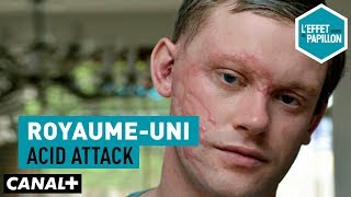 Documentaire Royaume-Uni : acid attack