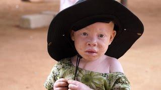 Documentaire L'Afrique albinos