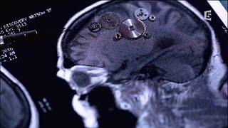Documentaire Accidents vasculaires cérébraux, les bons réflexes