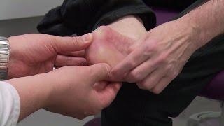 Documentaire Diabète : trop d'amputations évitables en Suisse