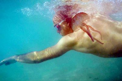 Documentaire L'invasion des méduses – Une prolifération inquiétante