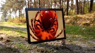 Documentaire Maladie de Lyme : épidémie ou psychose ?