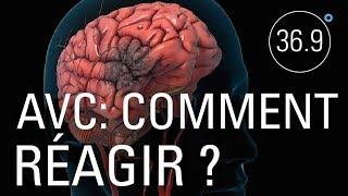 Documentaire AVC: limiter les dégâts grâce aux cellules souches neurales?