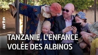 Documentaire Tanzanie : l'enfance volée des albinos