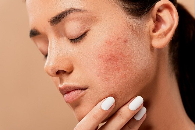 Quelles sont les maladies de peau que l'on rencontre souvent ?